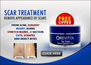Where To Buy Revitol Scar Cream